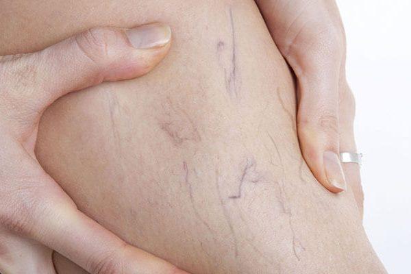 علاج الدوالي الوريدية بمساعدة الليزر و التصليب
