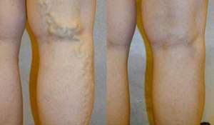واریس قبل و بعد از درمان