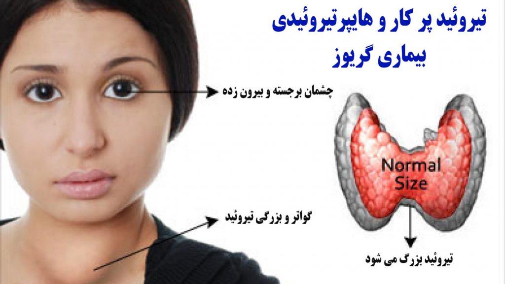 علائم بیماری گریوز