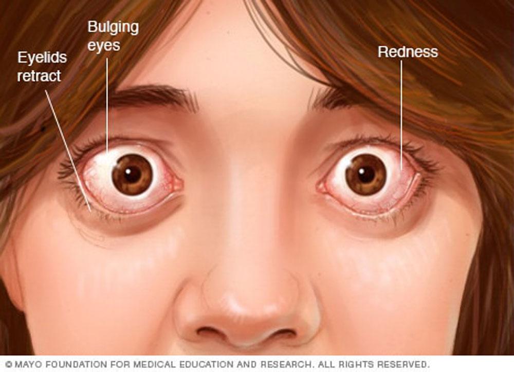 عوارض چشمی در بیماری گریوز