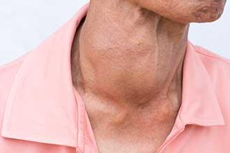 بیماری هاشیموتو می تواند باعث بزرگی تیروئید شود؟