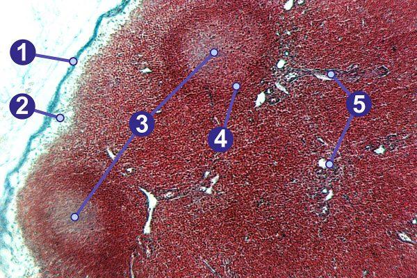 متاستاز سرطان تیروئید به غدد لنفاوی
