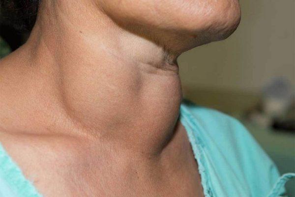 متاستاز سرطان تیروئید – تشخیص، درمان، علائم