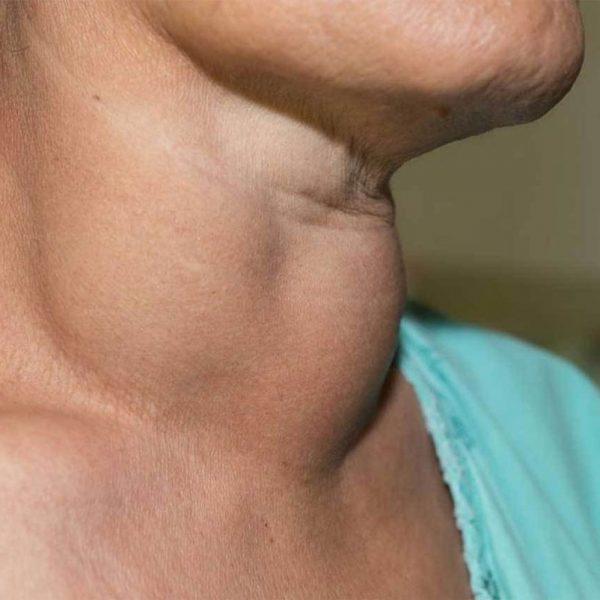 گسترش سرطان تیروئید به دیگر اندامها