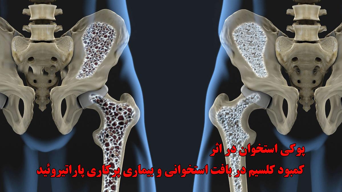 پوکی استخوان در اثر پرکاری پاراتیروئید