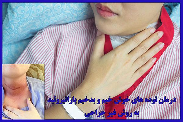 درمان توده های خوش خیم و بدخیم تیروئید و پاراتیروئید به روش غیر جراحی