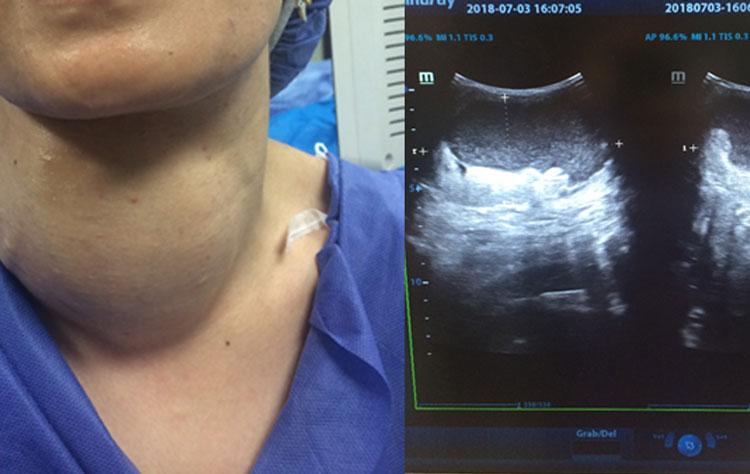 علت پرکاری تیروئید و درمان بدون جراحی ندول های آن