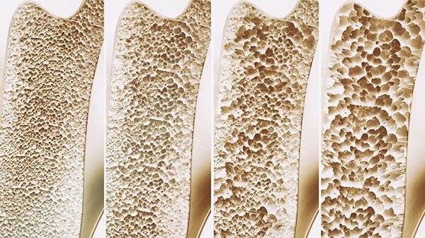 تیروئید باعث پوکی استخوان می شود