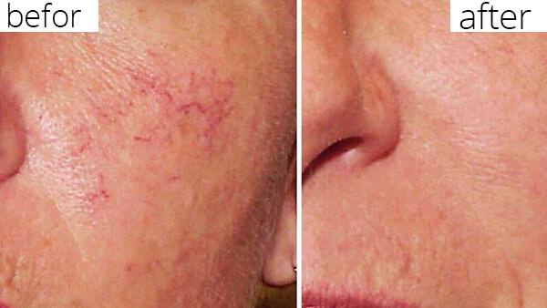 درمان رگهای عنکبوتی صورت