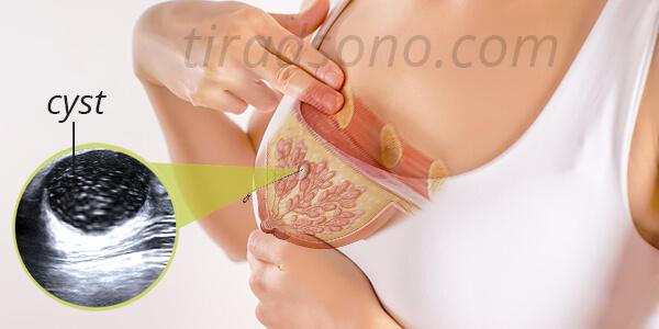 کیست سینه جه علائمی دارد؟