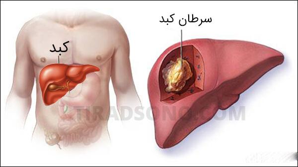 متاستاز در سرطان کبد