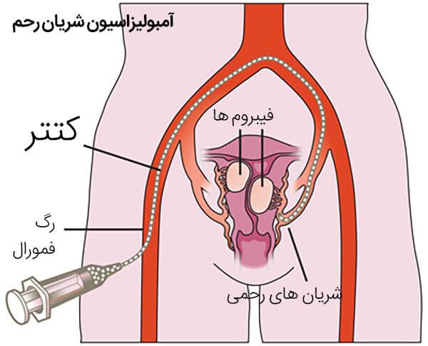 آمبولیزاسیون شریان رحم