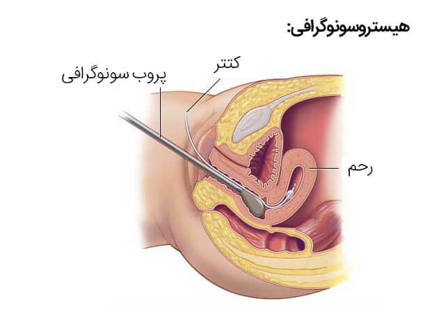 هیستروسونوگرافی چیست